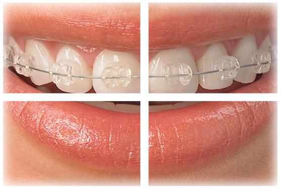 Ortodoncia 2 Renato Alvarez