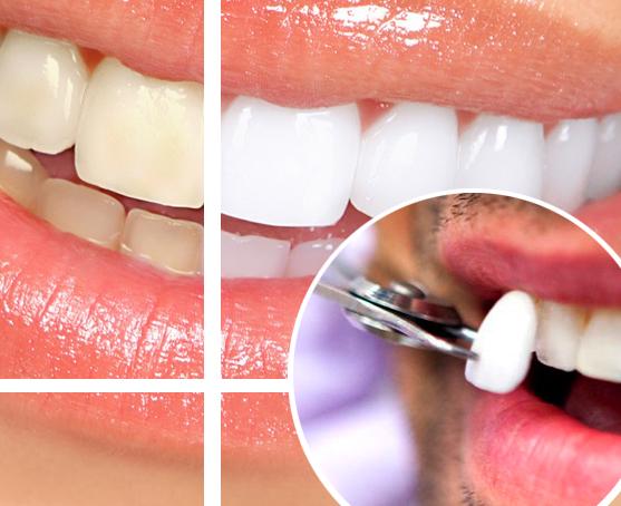 Reanto Alvarez Estetica Dental